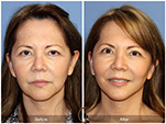 Orange County Facial Plastic Surgeon Facelift Revison Patient Number #17 Before and After Pictures.