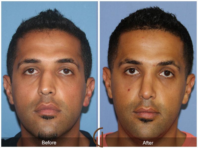 orange county ethnic rhinoplasty before amp after photos
