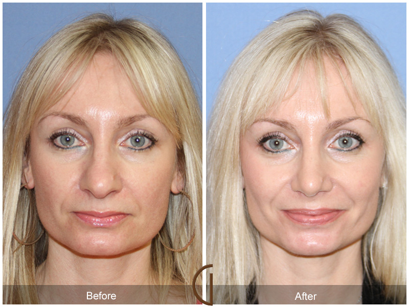 Newport Beach Rhinoplasty  Female Patient of the best facial surgeon Dr. Kevin Sadati