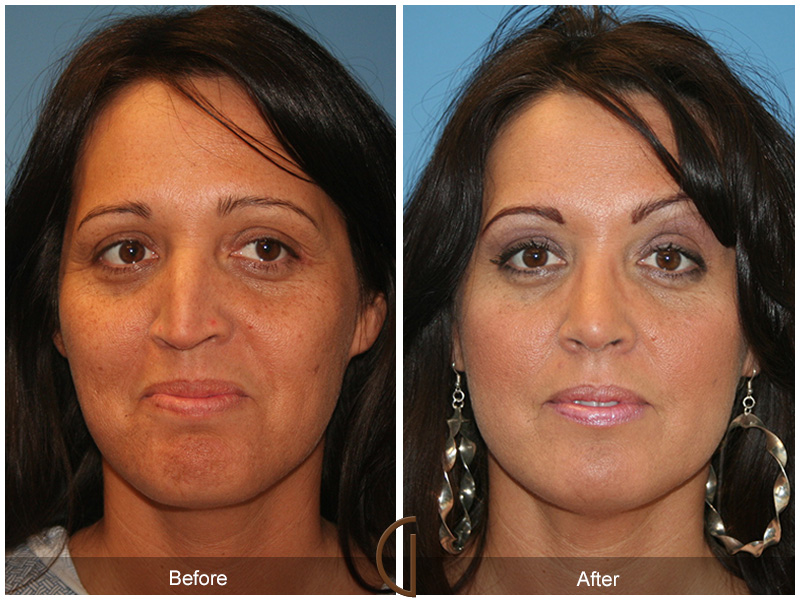 Facelift surgery recovery video