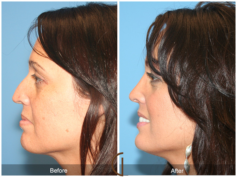 Before and after gallery for female rhinoplasty patient 50