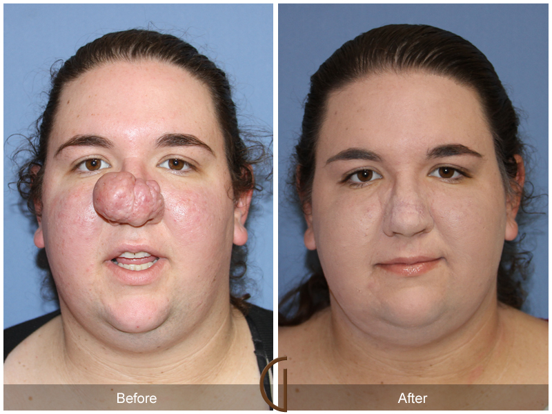 Orange County Female Rhinoplasty Before & After Photos. Easy Project Management Software. Best Way To Store Passwords Peach Tree Loan. Alternative To Methotrexate Crows Foot Grass. Civil Engineering Acronyms Icd Breast Cancer. Rehab Associates Paducah Ky Mai Wyn Schantz. Transport Management Software. Laser Spine Institute Orlando. Colleges For Animation In New York