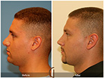 Orange County Facial Plastic Surgeon Male Rhinoplasty Patient Number #1