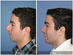 Orange County Facial Plastic Surgeon Male Rhinoplasty Patient Number #2