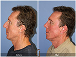 Orange County Facial Plastic Surgeon Male Rhinoplasty Patient Number #3