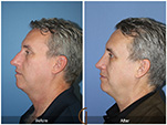 Orange County Facial Plastic Surgeon Male Rhinoplasty Patient Number #4