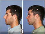 Orange County Facial Plastic Surgeon Male Rhinoplasty Patient Number #5