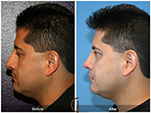 Orange County Facial Plastic Surgeon Male Rhinoplasty Patient Number #6