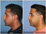 Orange County Facial Plastic Surgeon Male Rhinoplasty Patient Number #7