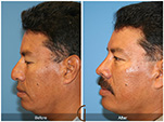 Orange County Facial Plastic Surgeon Male Rhinoplasty Patient Number #8