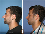 Orange County Facial Plastic Surgeon Male Rhinoplasty Patient Number #9