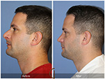 Orange County Facial Plastic Surgeon Male Rhinoplasty Patient Number #10
