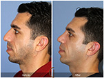 Orange County Facial Plastic Surgeon Male Rhinoplasty Patient Number #11