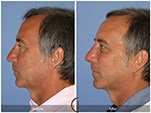 Orange County Facial Plastic Surgeon Male Rhinoplasty Patient Number #13