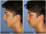 Orange County Facial Plastic Surgeon Male Rhinoplasty Patient Number #14
