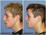 Orange County Facial Plastic Surgeon Male Rhinoplasty Patient Number #15