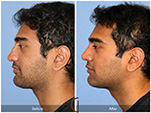 Orange County Facial Plastic Surgeon Male Rhinoplasty Patient Number #16