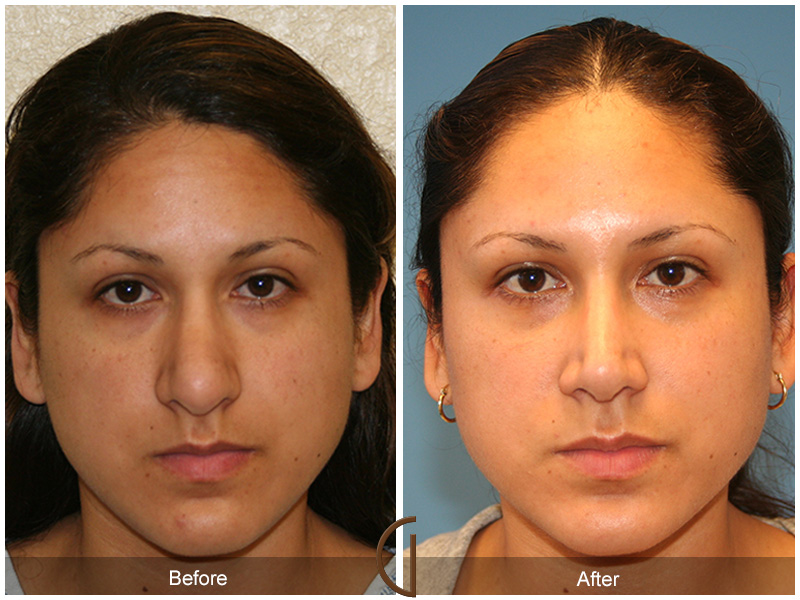 Orange County Revision Rhinoplasty Before & After Photos Patient 05