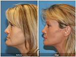 Orange County Facial Plastic Surgeon Revision Rhinoplasty Patient Number #2