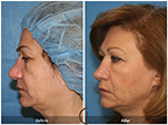 Orange County Facial Plastic Surgeon Revision Rhinoplasty Patient Number #3