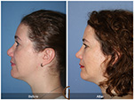 Orange County Facial Plastic Surgeon Revision Rhinoplasty Patient Number #4