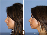 Orange County Facial Plastic Surgeon Revision Rhinoplasty Patient Number #5