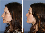 Orange County Facial Plastic Surgeon Revision Rhinoplasty Patient Number #6