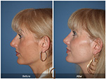 Orange County Facial Plastic Surgeon Revision Rhinoplasty Patient Number #7