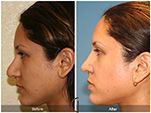 Orange County Facial Plastic Surgeon Revision Rhinoplasty Patient Number #8