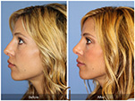 Orange County Facial Plastic Surgeon Revision Rhinoplasty Patient Number #9