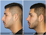 Orange County Facial Plastic Surgeon Revision Rhinoplasty Patient Number #10