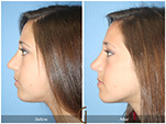 Orange County Facial Plastic Surgeon Revision Rhinoplasty Patient Number #11