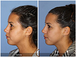 Orange County Facial Plastic Surgeon Revision Rhinoplasty Patient Number #12