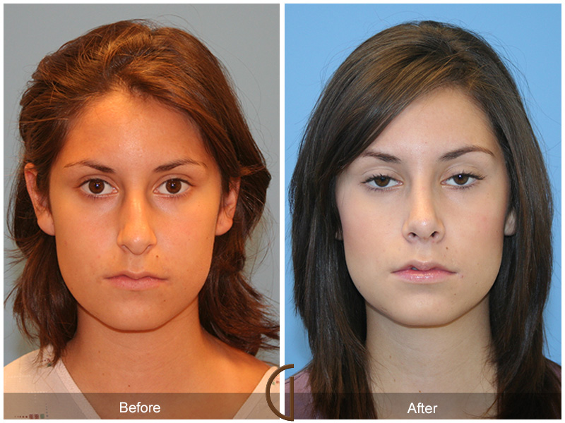 stop teen cosmetic surgery I attempted various types of plastic surgery, minutely but enough to stave off this   issue is really looming because girls in the us are getting it in their teens.