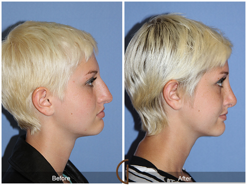 Before and after gallery for teen rhinoplasty patient 4