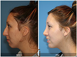 Orange County Facial Plastic Surgeon Teenage Rhinoplasty Patient Number #1