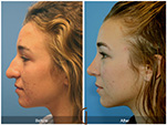 Orange County Facial Plastic Surgeon Teenage Rhinoplasty Patient Number #2