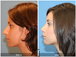 Orange County Facial Plastic Surgeon Teenage Rhinoplasty Patient Number #3
