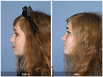 Orange County Facial Plastic Surgeon Teenage Rhinoplasty Patient Number #5