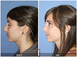 Orange County Facial Plastic Surgeon Teenage Rhinoplasty Patient Number #6