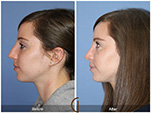 Orange County Facial Plastic Surgeon Teenage Rhinoplasty Patient Number #7