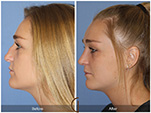 Orange County Facial Plastic Surgeon Teenage Rhinoplasty Patient Number #8