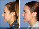 Orange County Facial Plastic Surgeon Teenage Rhinoplasty Patient Number #10