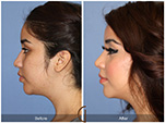 Orange County Facial Plastic Surgeon Teenage Rhinoplasty Patient Number #11