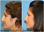 Orange County Facial Plastic Surgeon Teenage Rhinoplasty Patient Number #12