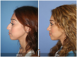 Orange County Facial Plastic Surgeon Teenage Rhinoplasty Patient Number #13