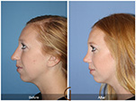 Orange County Facial Plastic Surgeon Teenage Rhinoplasty Patient Number #14