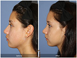 Orange County Facial Plastic Surgeon Teenage Rhinoplasty Patient Number #15
