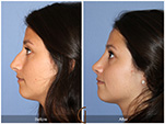 Orange County Facial Plastic Surgeon Teenage Rhinoplasty Patient Number #17