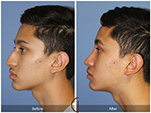Orange County Facial Plastic Surgeon Teenage Rhinoplasty Patient Number #18